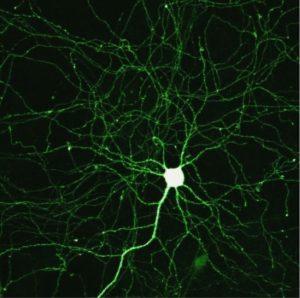 neuroplasticity neuron